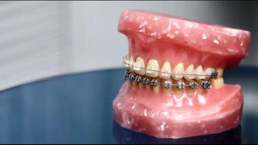 矯正歯科:全顎矯正
