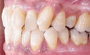 再生療法(歯周組織再生療法)