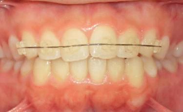 矯正歯科:部分矯正